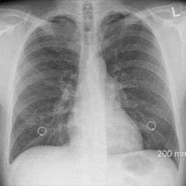 Röntgenbild des Thorax